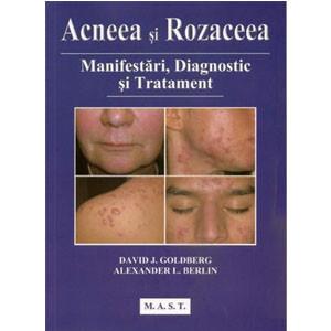Acneea şi Rozaceea. Manifestări, Diagnostic şi Tratament