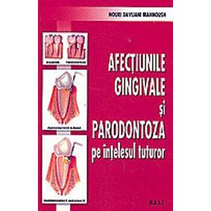 Afecțiunile Gingivale și Parodontoza pe Ințelesul Tuturor