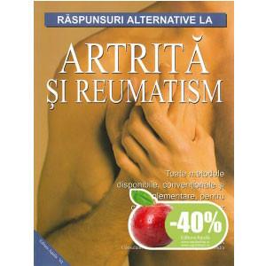 Răspunsuri alternative la Artrită și Reumatism